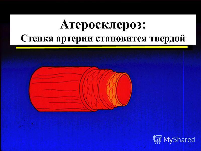 Атеросклероз: Стенка артерии становится твердой