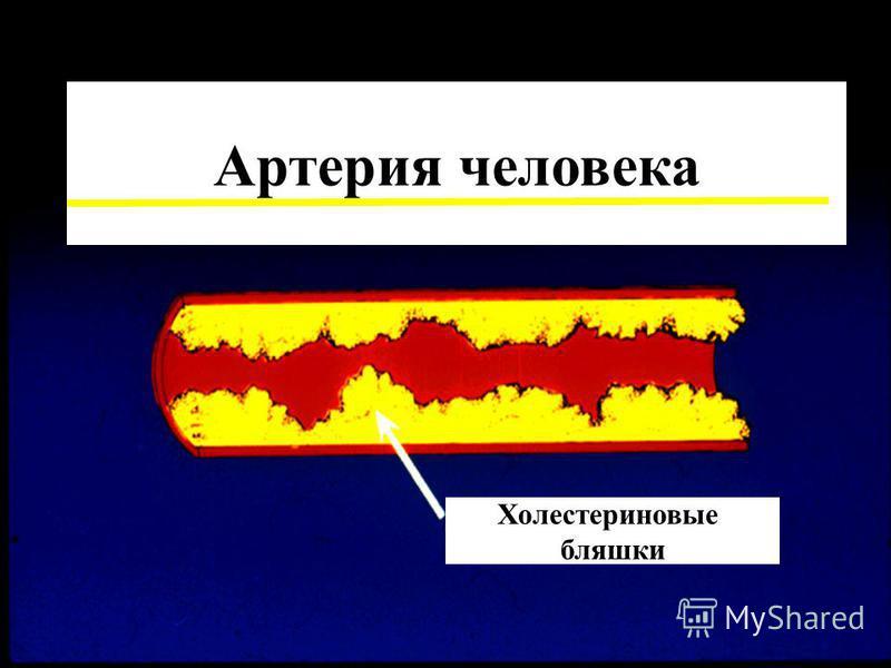 Артерия человека Холестериновые бляшки