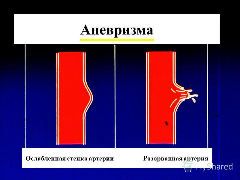 Аневризма Ослабленная стенка артерии Разорванная артерия