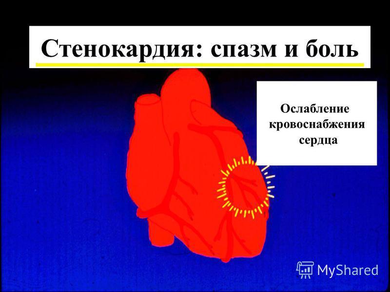 Ослабление кровоснабжения сердца Стенокардия: спазм и боль