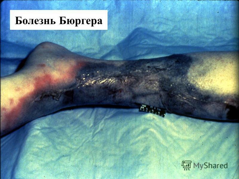 Buergers Disease Болезнь Бюргера
