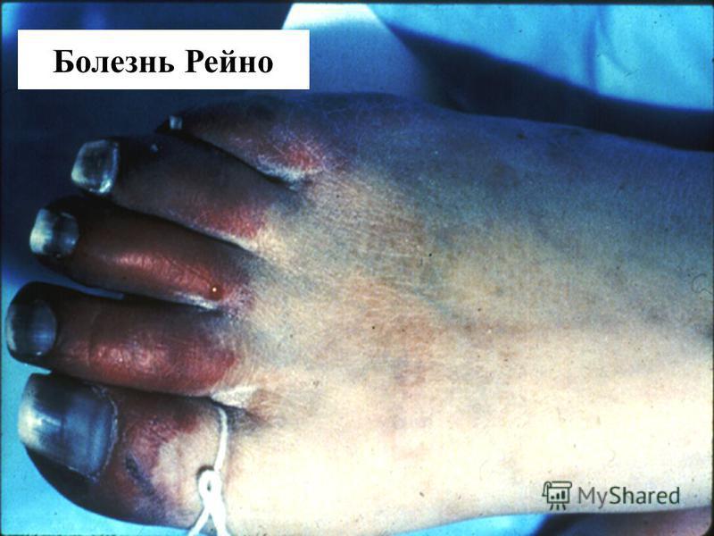 Raynauds Disease Болезнь Рейно