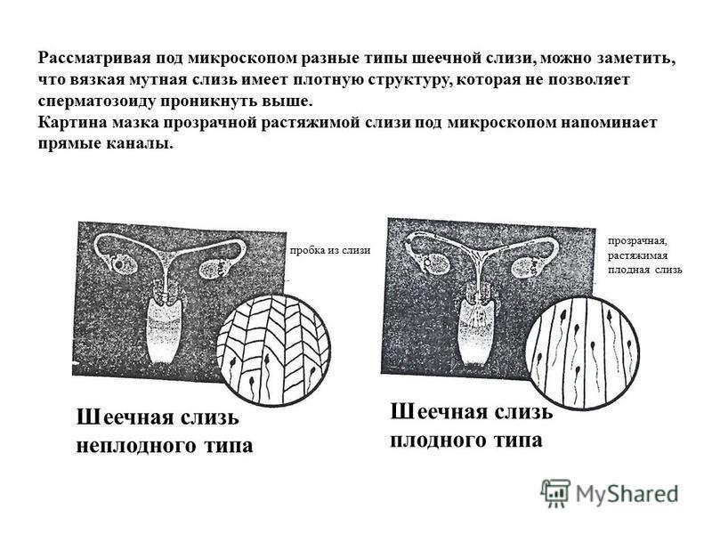 Шеечная слизь неплодного типа Шеечная слизь плодного типа пробка из слизи прозрачная, растяжимая плодная слизь Рассматривая под микроскопом разные типы шеечной слизи, можно заметить, что вязкая мутная слизь имеет плотную структуру, которая не позволя