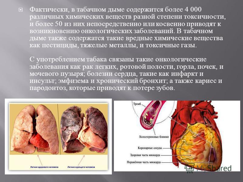 Фактически, в табачном дыме содержится более 4 000 различных химических веществ разной степени токсичности, и более 50 из них непосредственно или косвенно приводят к возникновению онкологических заболеваний. В табачном дыме также содержатся такие вре