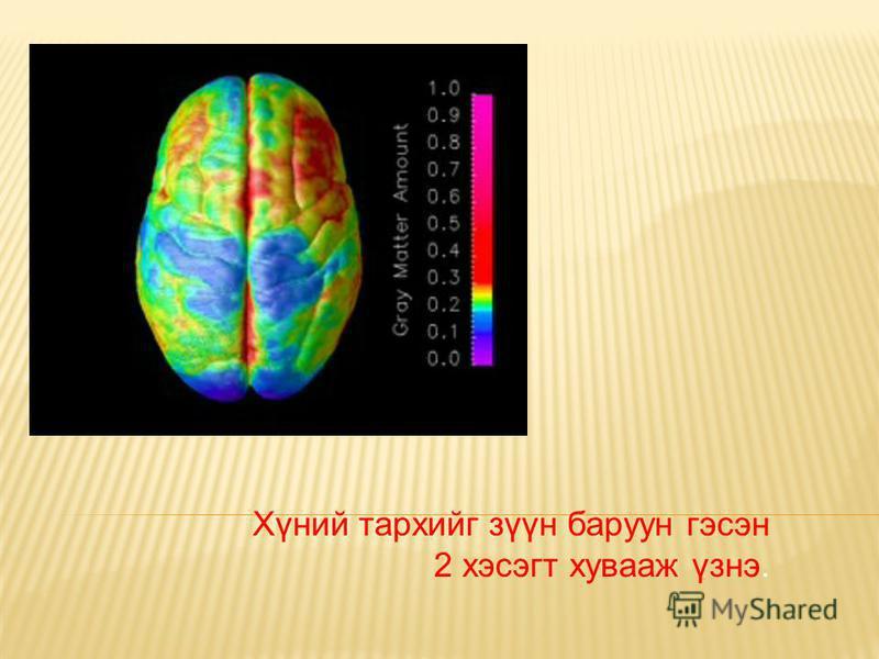 Хүний тархийг зүүн баруун гэсэн 2 хэсэгт хувааж үзнэ.