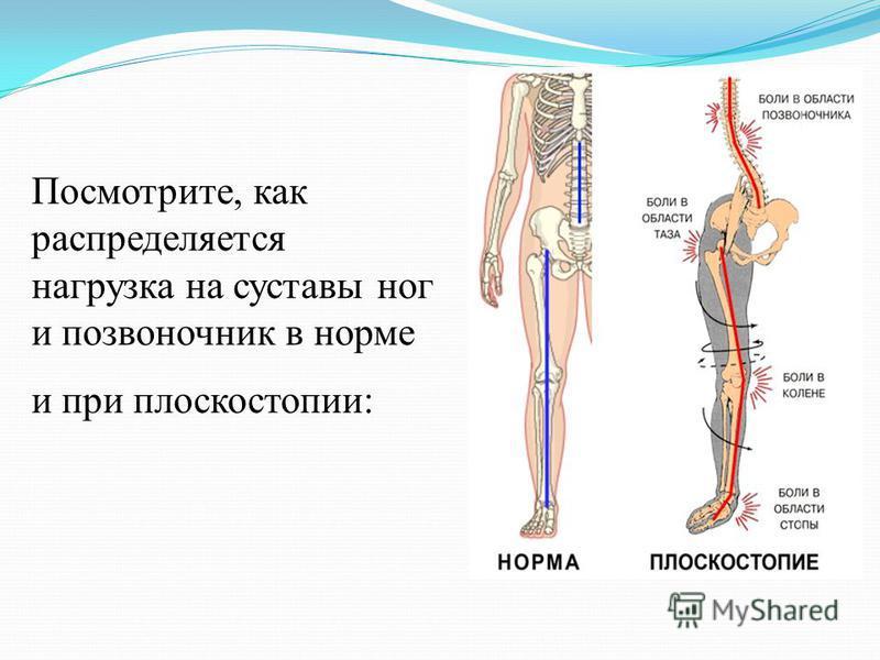 Посмотрите, как распределяется нагрузка на суставы ног и позвоночник в норме и при плоскостопии:
