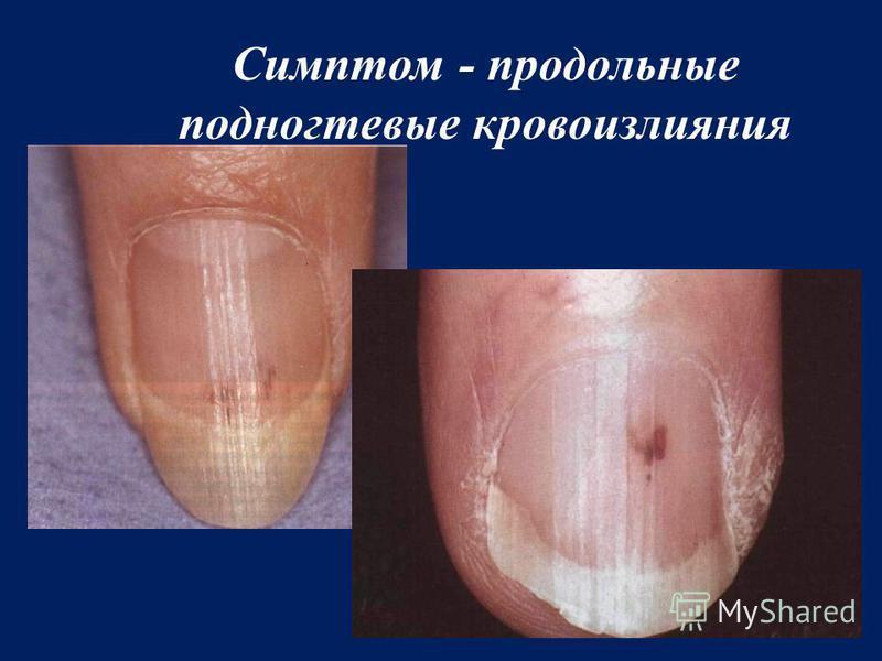 Симптом - продольные подногтевые кровоизлияния