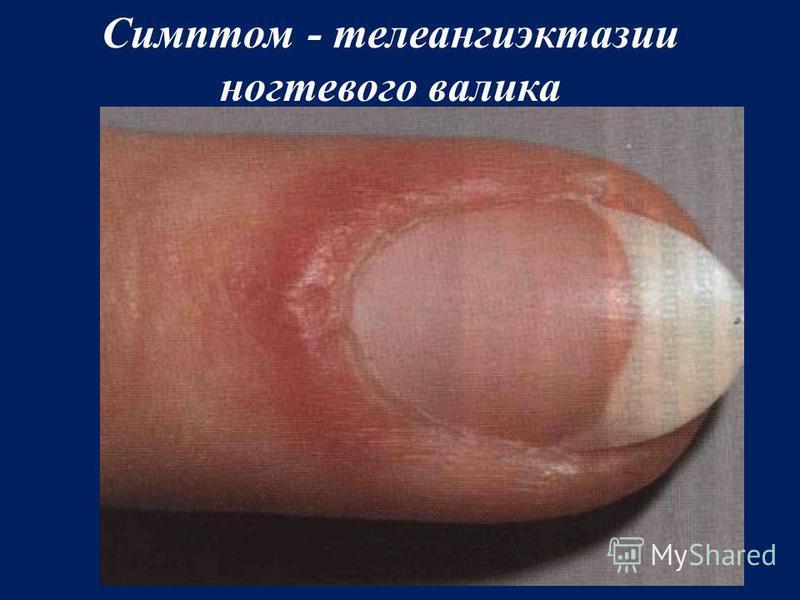 Симптом - телеангиэктазии ногтевого валика