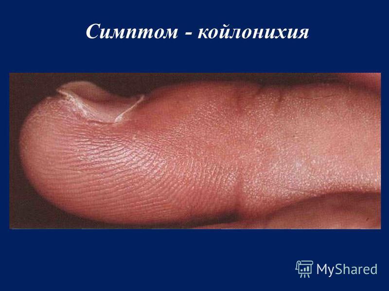 Симптом - койлонихия