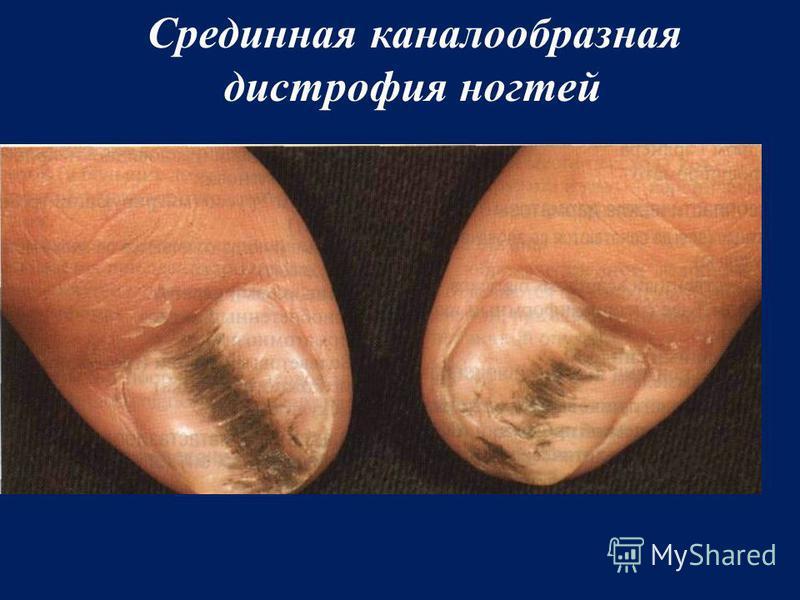Срединная каналообразная дистрофия ногтей