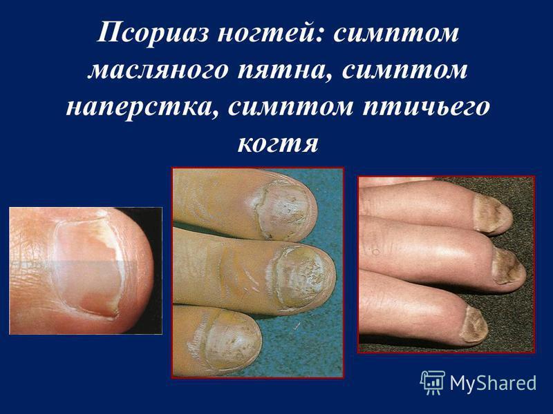 Псориаз ногтей: симптом масляного пятна, симптом наперстка, симптом птичьего когтя