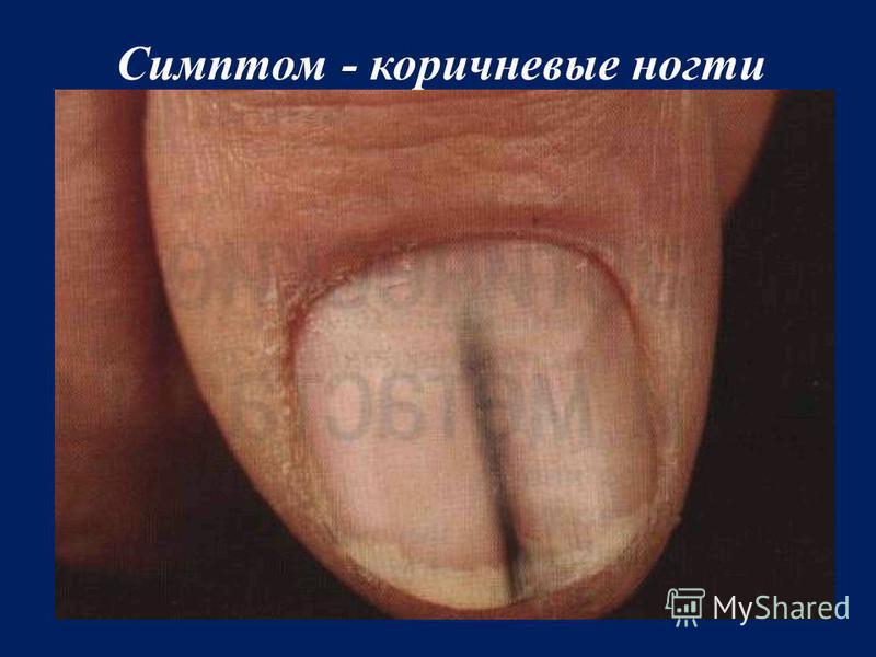 Симптом - коричневые ногти