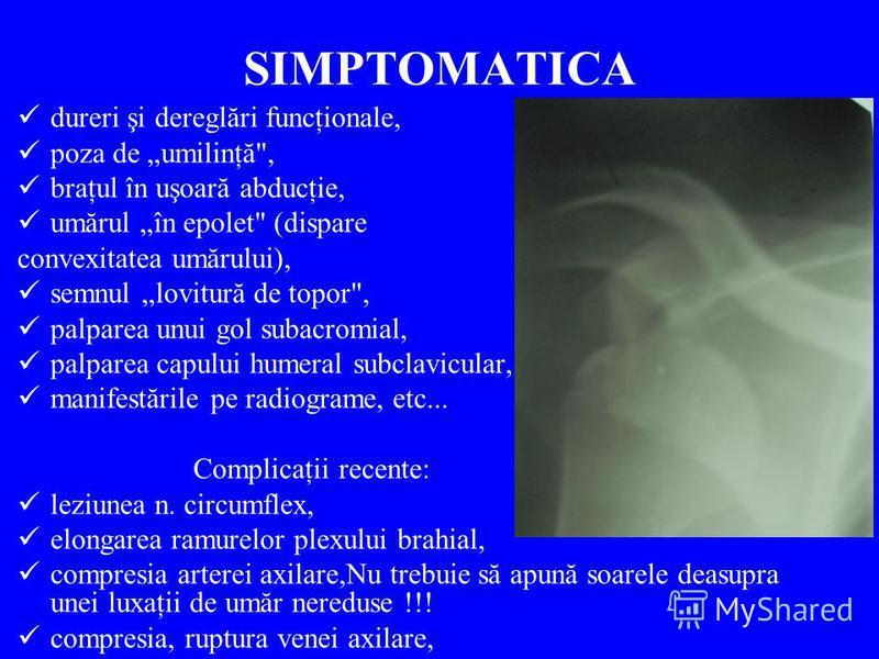 SIMPTOMATICA dureri şi dereglări funcţionale, poza de umilinţă
