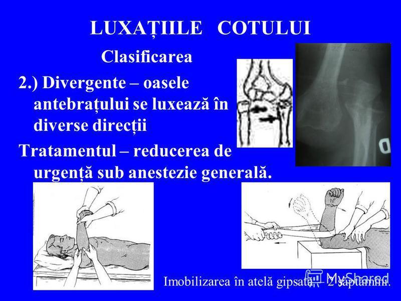LUXAŢIILE COTULUI Clasificarea 2.) Divergente – oasele antebraţului se luxează în diverse direcţii Tratamentul – reducerea de urgenţă sub anestezie generală. Imobilizarea în atelă gipsată – 2 săptămîni.