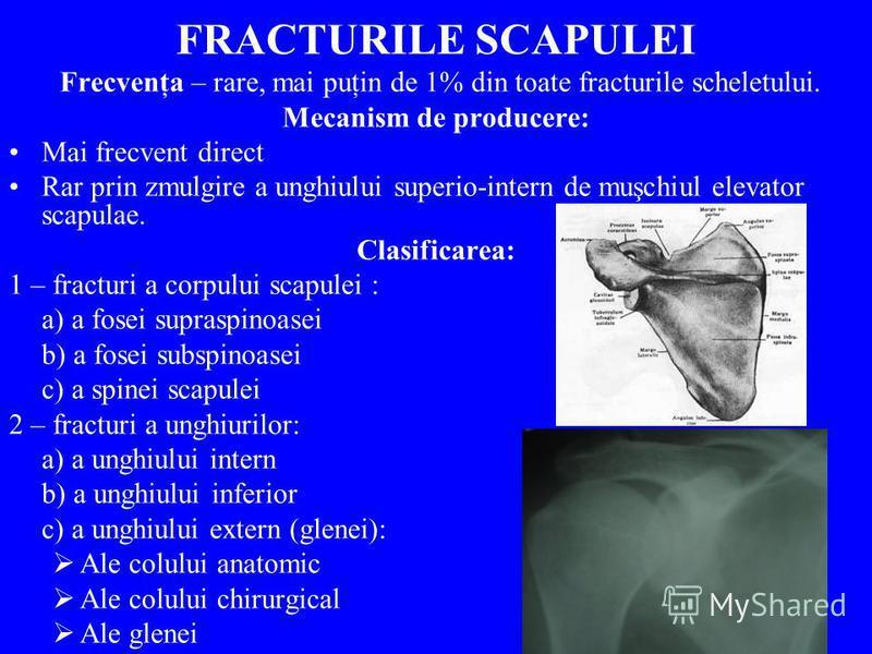 FRACTURILE SCAPULEI Frecvenţa – rare, mai puţin de 1% din toate fracturile scheletului. Mecanism de producere: Mai frecvent direct Rar prin zmulgire a unghiului superio-intern de muşchiul elevator scapulae. Clasificarea: 1 – fracturi a corpului scapu