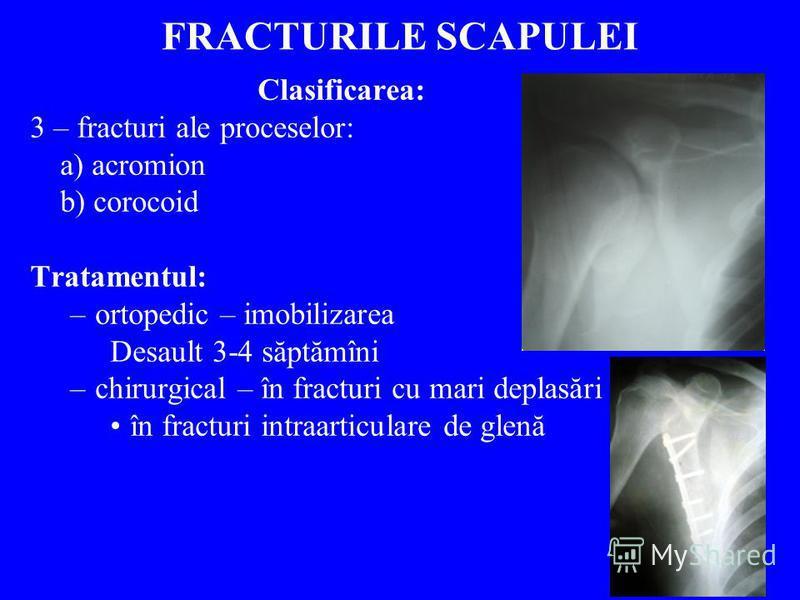 FRACTURILE SCAPULEI Clasificarea: 3 – fracturi ale proceselor: a) acromion b) corocoid Tratamentul: –ortopedic – imobilizarea Desault 3-4 săptămîni –chirurgical – în fracturi cu mari deplasări în fracturi intraarticulare de glenă