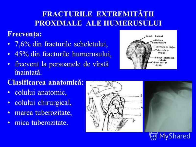 FRACTURILE EXTREMITĂŢII PROXIMALE ALE HUMERUSULUI Frecvenţa: 7,6% din fracturile scheletului, 45% din fracturile humerusului, frecvent la persoanele de vîrstă înaintată. Clasificarea anatomică: colului anatomic, colului chirurgical, marea tuberozitat