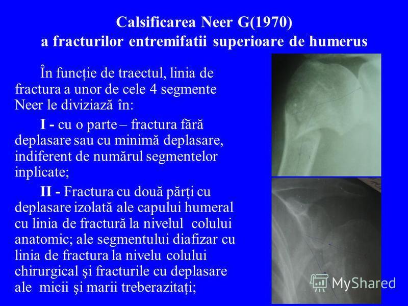 Calsificarea Neer G(1970) a fracturilor entremifatii superioare de humerus În funcţie de traectul, linia de fractura a unor de cele 4 segmente Neer le diviziază în: I - cu o parte – fractura fără deplasare sau cu minimă deplasare, indiferent de număr