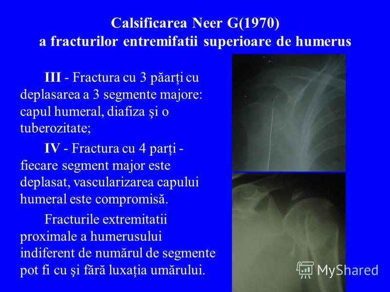 Calsificarea Neer G(1970) a fracturilor entremifatii superioare de humerus III - Fractura cu 3 păarţi cu deplasarea a 3 segmente majore: capul humeral, diafiza şi o tuberozitate; IV - Fractura cu 4 parţi - fiecare segment major este deplasat, vascula