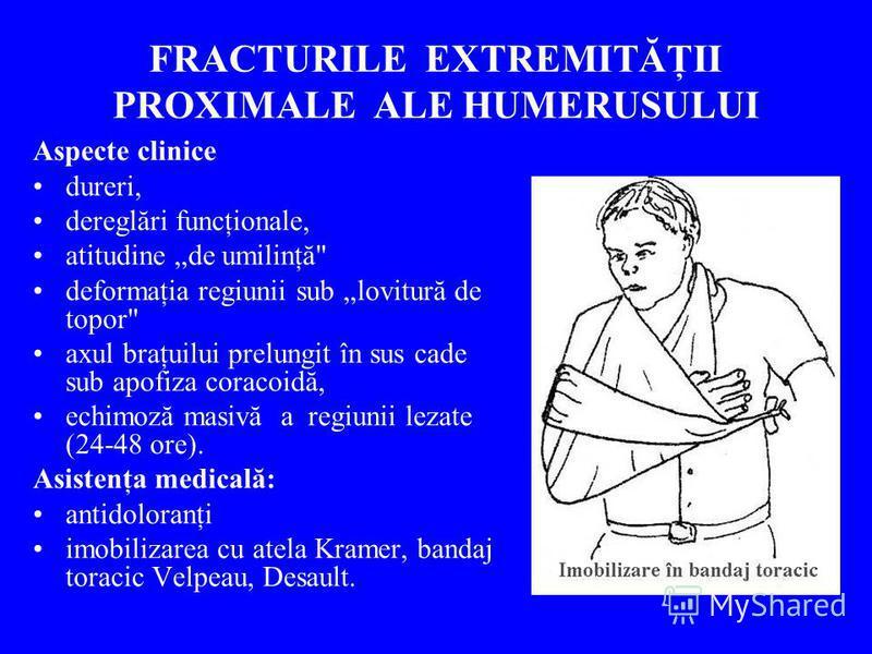 FRACTURILE EXTREMITĂŢII PROXIMALE ALE HUMERUSULUI Aspecte clinice dureri, dereglări funcţionale, atitudine de umilinţă