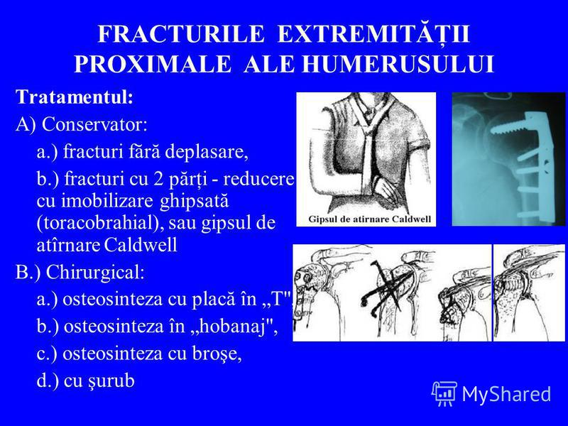 FRACTURILE EXTREMITĂŢII PROXIMALE ALE HUMERUSULUI Tratamentul: A) Conservator: a.) fracturi fără deplasare, b.) fracturi cu 2 părţi - reducere cu imobilizare ghipsată (toracobrahial), sau gipsul de atîrnare Caldwell B.) Chirurgical: a.) osteosinteza