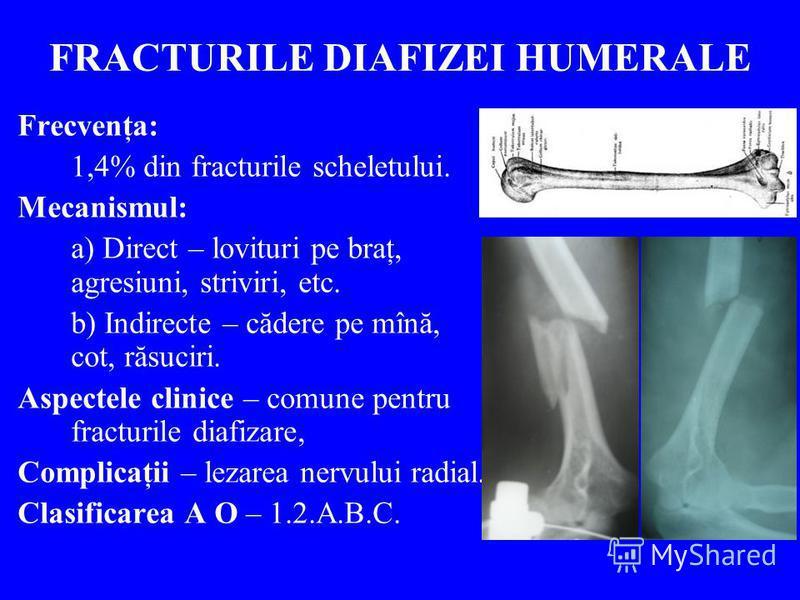 FRACTURILE DIAFIZEI HUMERALE Frecvenţa: 1,4% din fracturile scheletului. Mecanismul: a) Direct – lovituri pe braţ, agresiuni, striviri, etc. b) Indirecte – cădere pe mînă, cot, răsuciri. Aspectele clinice – comune pentru fracturile diafizare, Complic