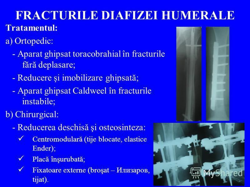 FRACTURILE DIAFIZEI HUMERALE Tratamentul: a) Ortopedic: - Aparat ghipsat toracobrahial în fracturile fără deplasare; - Reducere şi imobilizare ghipsată; - Aparat ghipsat Caldweel în fracturile instabile; b) Chirurgical: - Reducerea deschisă şi osteos