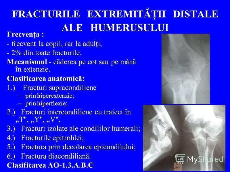 FRACTURILE EXTREMITĂŢII DISTALE ALE HUMERUSULUI Frecvenţa : - frecvent la copil, rar la adulţi, - 2% din toate fracturile. Mecanismul - căderea pe cot sau pe mână în extenzie. Clasificarea anatomică: 1.) Fracturi supracondiliene –prin hiperextenzie;