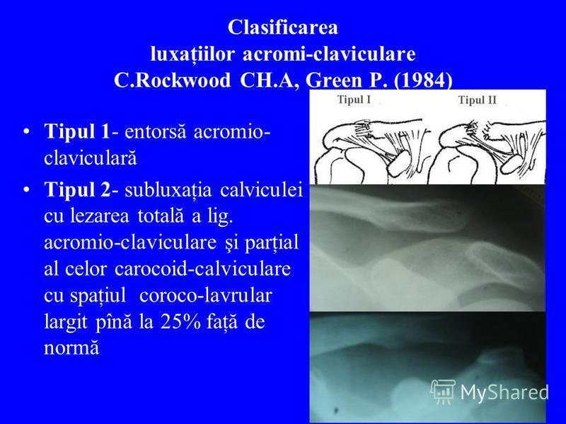 Clasificarea luxaţiilor acromi-claviculare C.Rockwood CH.A, Green P. (1984) Tipul 1- entorsă acromio- claviculară Tipul 2- subluxaţia calviculei cu lezarea totală a lig. acromio-claviculare şi parţial al celor carocoid-calviculare cu spaţiul coroco-l