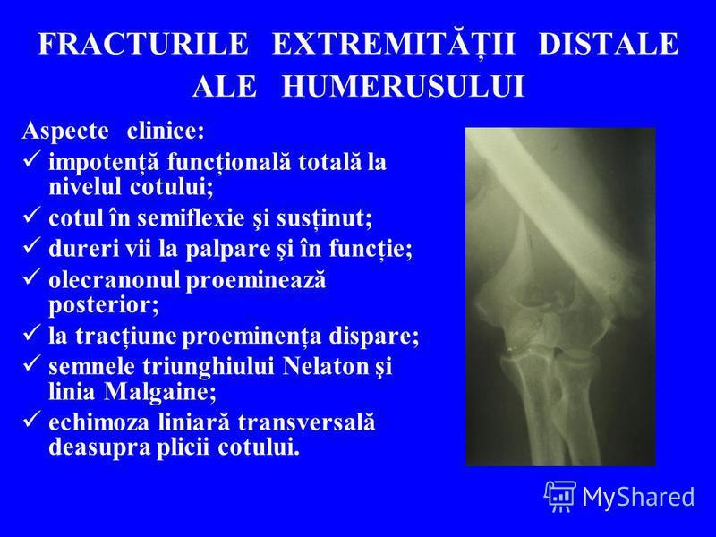 FRACTURILE EXTREMITĂŢII DISTALE ALE HUMERUSULUI Aspecte clinice: impotenţă funcţională totală la nivelul cotului; cotul în semiflexie şi susţinut; dureri vii la palpare şi în funcţie; olecranonul proeminează posterior; la tracţiune proeminenţa dispar