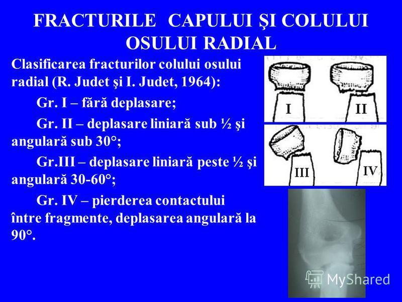 FRACTURILE CAPULUI ŞI COLULUI OSULUI RADIAL Clasificarea fracturilor colului osului radial (R. Judet şi I. Judet, 1964): Gr. I – fără deplasare; Gr. II – deplasare liniară sub ½ şi angulară sub 30°; Gr.III – deplasare liniară peste ½ şi angulară 30-6