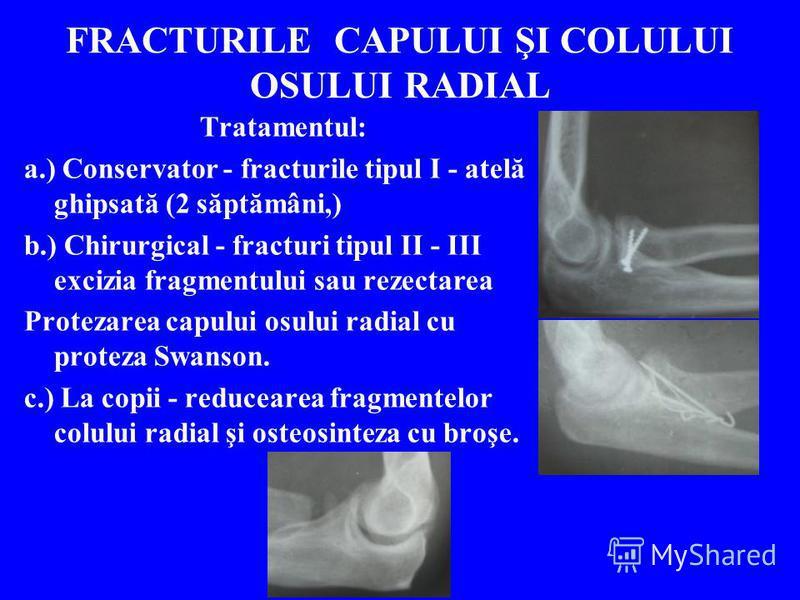 FRACTURILE CAPULUI ŞI COLULUI OSULUI RADIAL Tratamentul: a.) Conservator - fracturile tipul I - atelă ghipsată (2 săptămâni,) b.) Chirurgical - fracturi tipul II - III excizia fragmentului sau rezectarea Protezarea capului osului radial cu proteza Sw