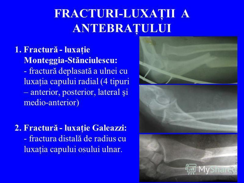 FRACTURI-LUXAŢII A ANTEBRAŢULUI 1. Fractură - luxaţie Monteggia-Stănciulescu: - fractură deplasată a ulnei cu luxaţia capului radial (4 tipuri – anterior, posterior, lateral şi medio-anterior) 2. Fractură - luxaţie Galeazzi: - fractura distală de rad