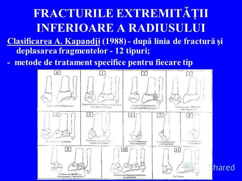 FRACTURILE EXTREMITĂŢII INFERIOARE A RADIUSULUI Clasificarea A. Kapandji (1988) - după linia de fractură şi deplasarea fragmentelor - 12 tipuri; - metode de tratament specifice pentru fiecare tip