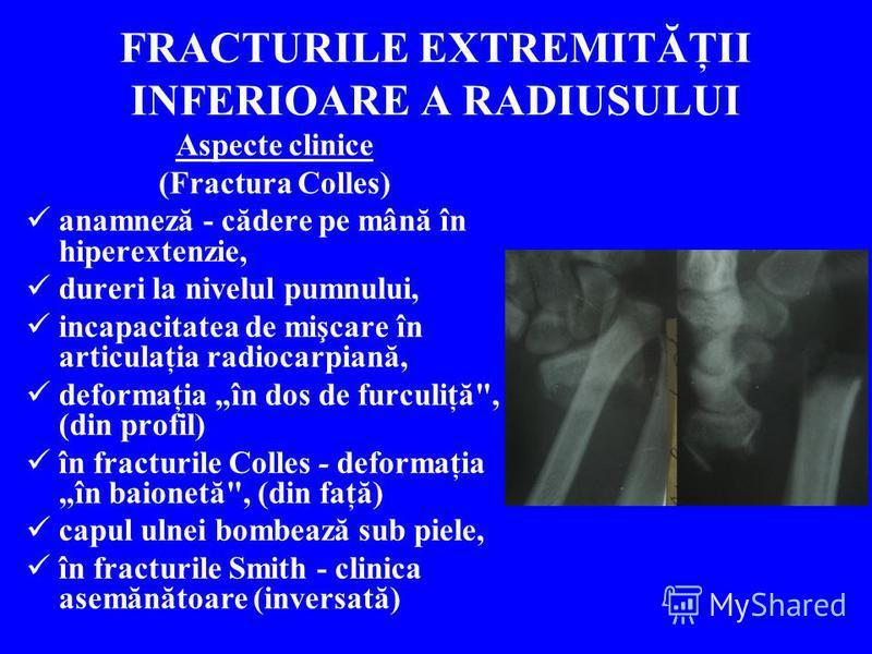 FRACTURILE EXTREMITĂŢII INFERIOARE A RADIUSULUI Aspecte clinice (Fractura Colles) anamneză - cădere pe mână în hiperextenzie, dureri la nivelul pumnului, incapacitatea de mişcare în articulaţia radiocarpiană, deformaţia în dos de furculiţă