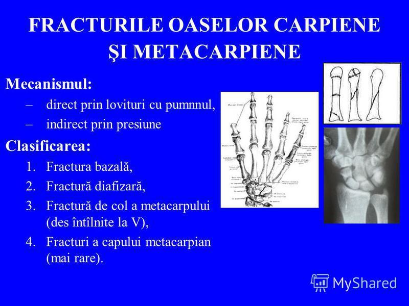 FRACTURILE OASELOR CARPIENE ŞI METACARPIENE Mecanismul: –direct prin lovituri cu pumnnul, –indirect prin presiune Clasificarea: 1.Fractura bazală, 2.Fractură diafizară, 3.Fractură de col a metacarpului (des întîlnite la V), 4.Fracturi a capului metac