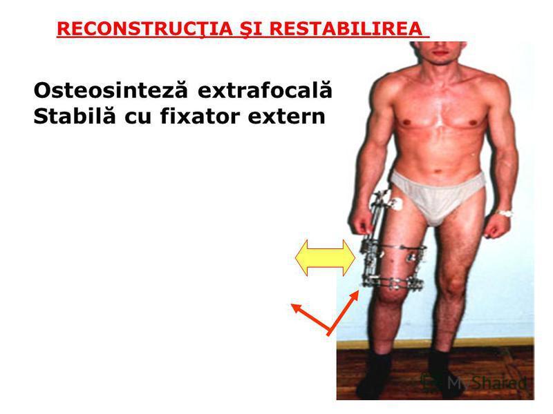 RECONSTRUCŢIA ŞI RESTABILIREA Osteosinteză extrafocală Stabilă cu fixator extern