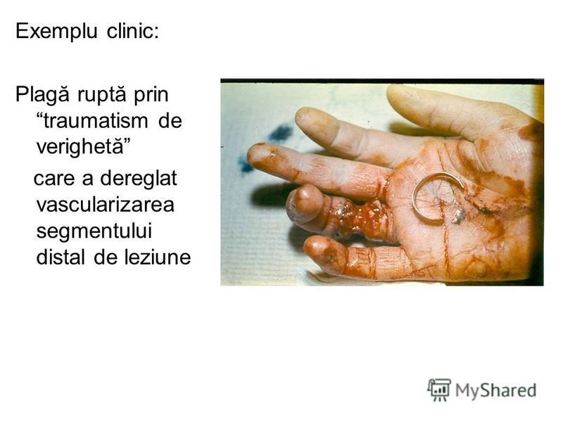Exemplu clinic: Plagă ruptă prin traumatism de verighetă care a dereglat vascularizarea segmentului distal de leziune