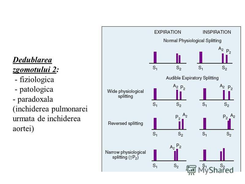 Dedublarea zgomotului 2: - fiziologica - patologica - paradoxala (inchiderea pulmonarei urmata de inchiderea aortei)