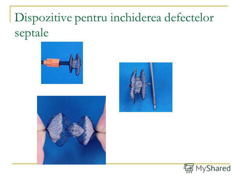 Dispozitive pentru inchiderea defectelor septale