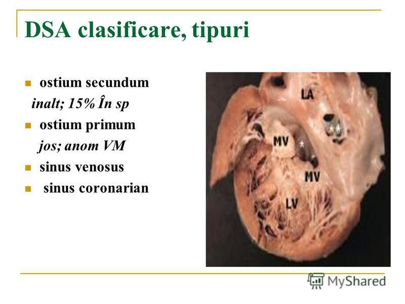 DSA clasificare, tipuri ostium secundum inalt; 15% În sp ostium primum jos; anom VM sinus venosus sinus coronarian