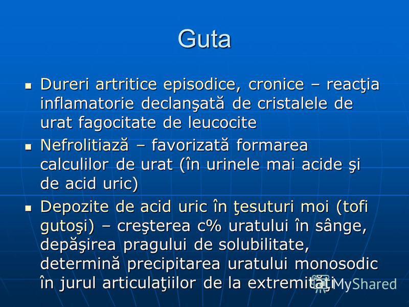 Guta Dureri artritice episodice, cronice – reacţia inflamatorie declanşată de cristalele de urat fagocitate de leucocite Dureri artritice episodice, cronice – reacţia inflamatorie declanşată de cristalele de urat fagocitate de leucocite Nefrolitiază