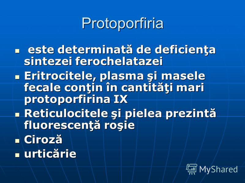 Protoporfiria este determinată de deficienţa sintezei ferochelatazei este determinată de deficienţa sintezei ferochelatazei Eritrocitele, plasma şi masele fecale conţin în cantităţi mari protoporfirina IX Eritrocitele, plasma şi masele fecale conţin