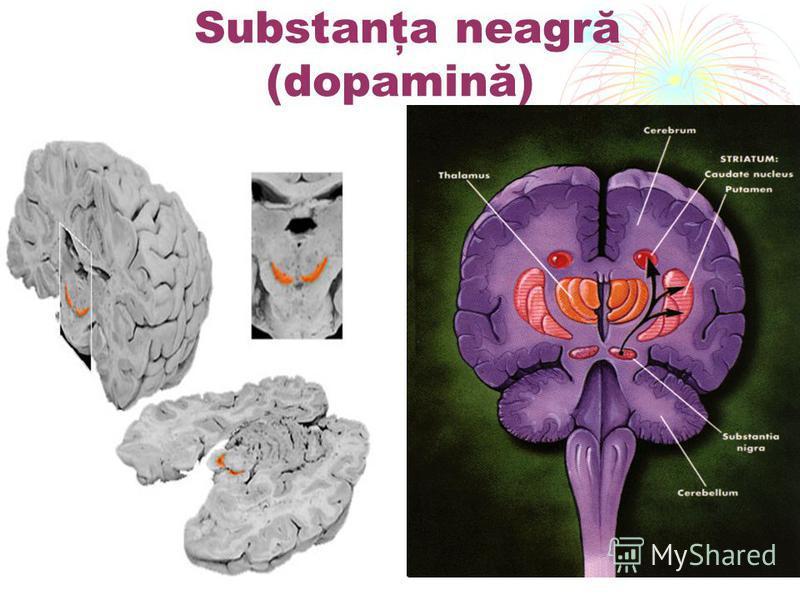 Substanţa neagră (dopamină)