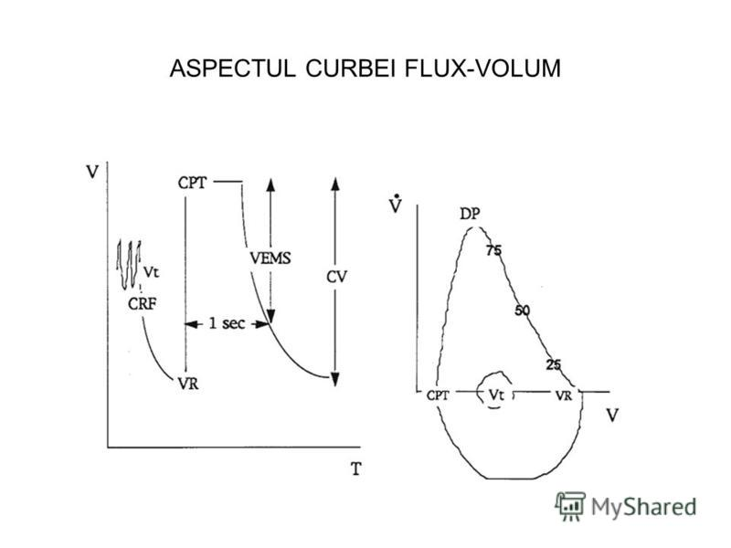 ASPECTUL CURBEI FLUX-VOLUM