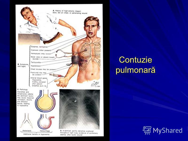 Contuzie pulmonară