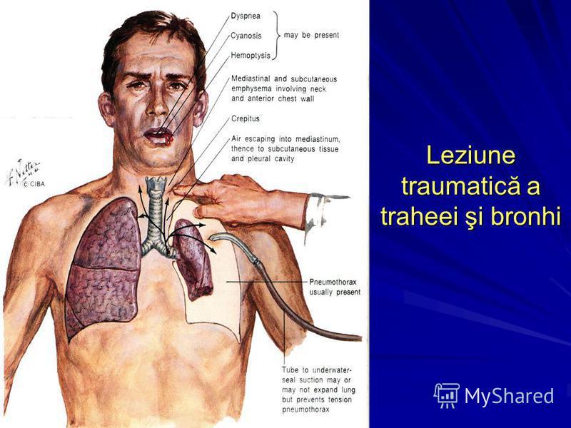 Leziune traumatică a traheei şi bronhi