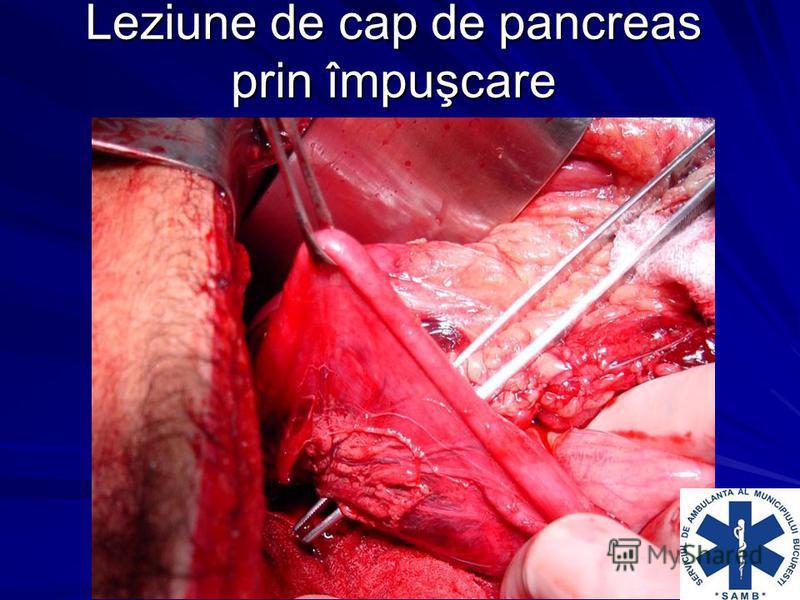 Leziune de cap de pancreas prin împuşcare