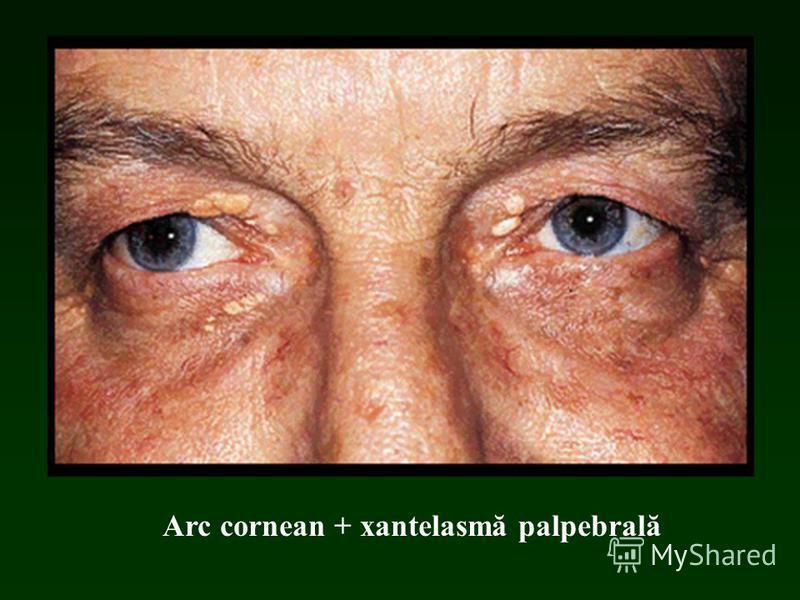 Arc cornean + xantelasmă palpebrală