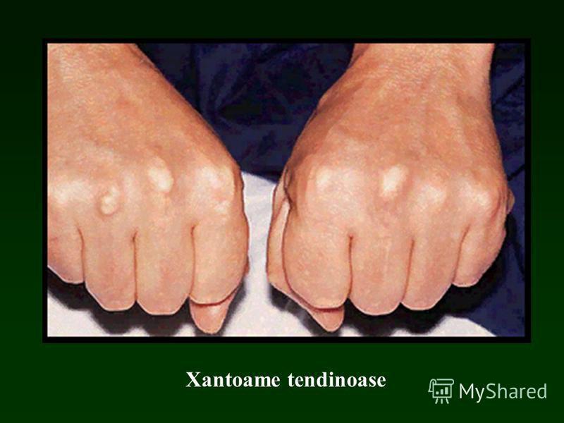 Xantoame tendinoase